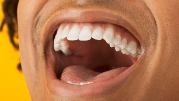 Doces e bebidas diets prejudicam os dentes tanto quanto os produtos com açúcar