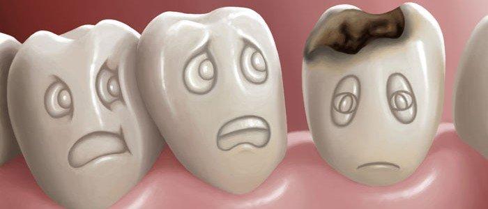 Dente com canal já tratado pode ter cárie?